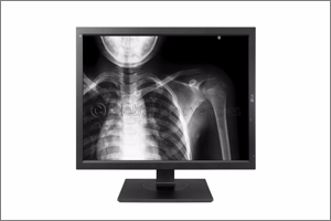 LG Unveils Expanded Medical Imaging Product Lineup at Medica 2017