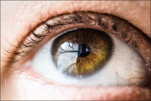 Experts at MEHD Warn Residents of the Risk of Developing Cataracts