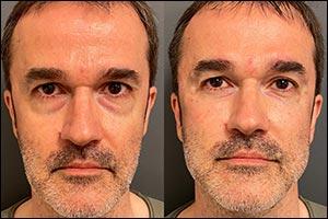 Dr. Antoni Calmon Treatments